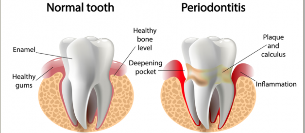 Best Toothpaste For Periodontal Disease