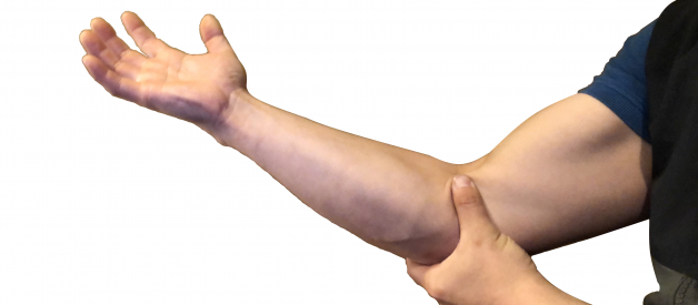 Climber's Elbow: a guide to self management for elbow pain