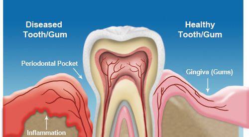 Home Remedy For Swollen Gum Around One Tooth