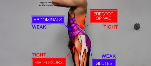 How I Fixed my Anterior Pelvic Tilt (APT)