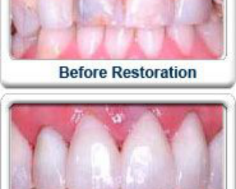 How Long do Dental Crowns Last on Front Teeth?