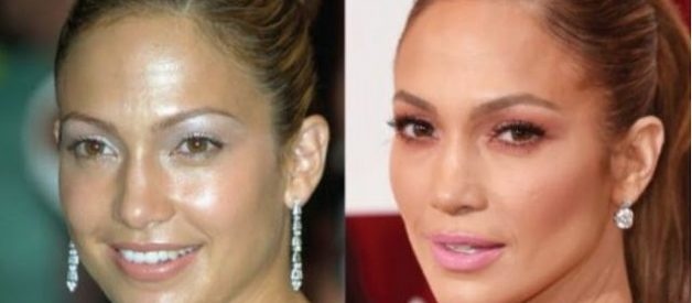 JENNIFER LOPEZ PLASTIC INSIGHT