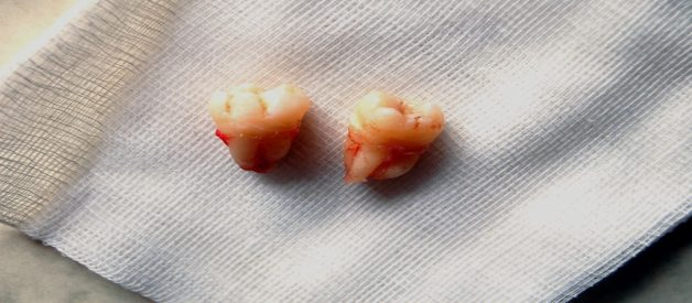 Things Causing More than Ordinary Pain after Tooth Extraction